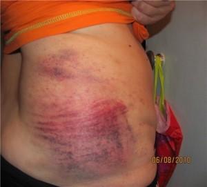 Последствие неправильного антицеллюлитного массажа