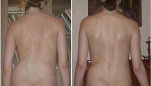 Спина до и после курса лечения